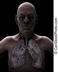 Älterer Mann mit Lungenkrebs Illustration