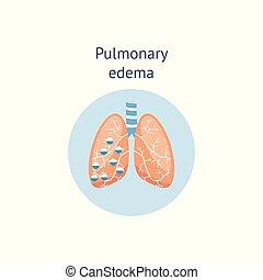 ödem, isolated., krankheit, abbildung, diagramm, vektor, lunge, medizinprodukt, lungen