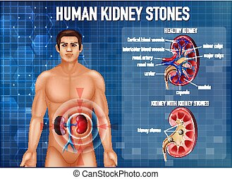 abbildung, informativ, steine, niere