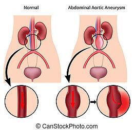 Abdominales Aortenaneurysma, eps8