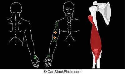 abzug, muscle., punkte, brachialis, arm