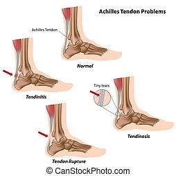Achillessehnenprobleme,