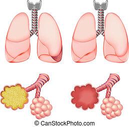 Alveoli in den Lungen
