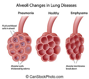 Alveoli in Lungenkrankheiten
