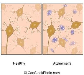 Alzheimer-Hirngewebe wyloid
