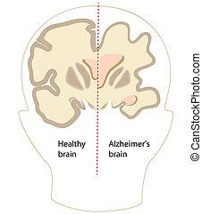 Alzheimer-Krankheitshirn, ESP8.