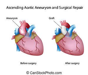 aortal, aufsteigend, aneurysma
