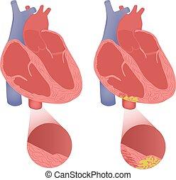 arrhythmogenic, herz, arrhytmogenic, cardiomyopathy., gesunde, dysplasia, abbildung, ventrikulär, vektor, recht
