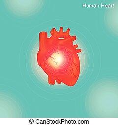 arteriell, arterien, widen, angioplasty, atherosklerose, geäder, behandeln, endovascular, blockiert, eingeengt hat, typisch, oder, verfahren