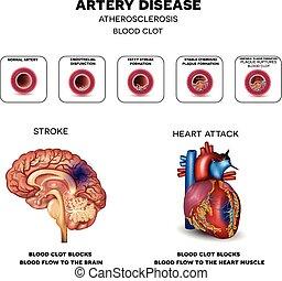 Arterienkrankheit