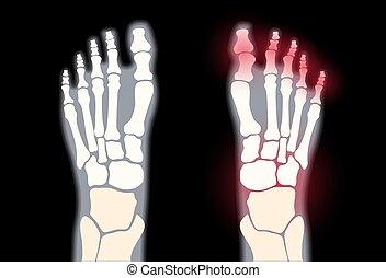 arthritis, begriff, fuß