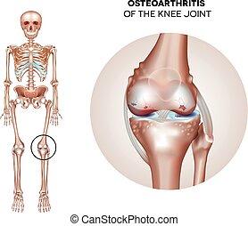 Arthritis des Kniegelenks.