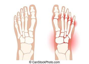 arthritis, fuß, begriff