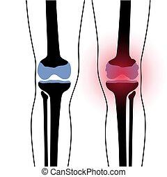arthritis, gelenk, knie