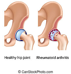 arthritis, gelenk, rheumatoid, hüfte
