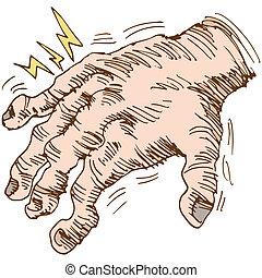 arthritis, hand