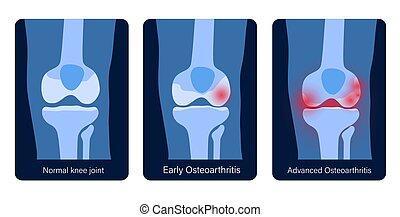 arthritis, kniegelenk