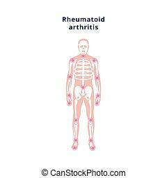 arthritis, schmerz, menschliches skelett, quellen, plakat, rheumatoid, krankheit