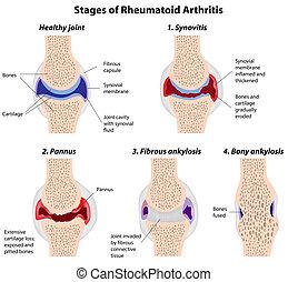 arthritis, stadien, rheumatoid