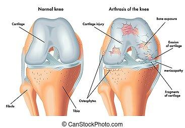Arthrosis des Knies.