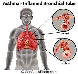 Asthma-inflamierte Bronchialröhre.