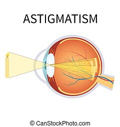 astigmatism., abbildung