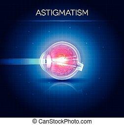 Astigmatismus Augenkrankheit. Anatomie des Auges, Querschnitt.
