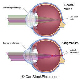 astigmatismus, eps10