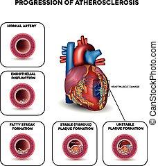 Atherosklerose bis zum Herzinfarkt