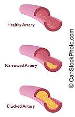 atherosklerose