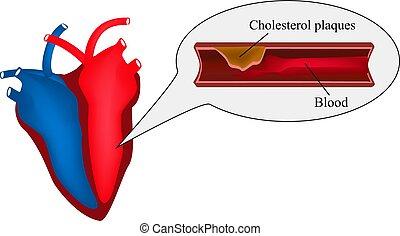 Atherosklerose des Herzens. Angina Pectoris. Herzkrankheit. Weltherztag. Vector Illustration auf isoliertem Hintergrund.
