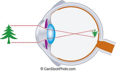Augeballoptik und Sehlinse