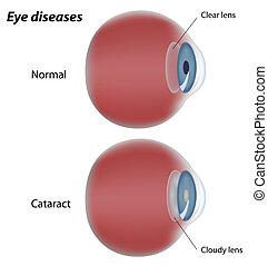 Augenkrankheiten-Katarakte, Eps8
