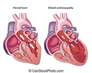 ausgedehnt, cardiomyopathy