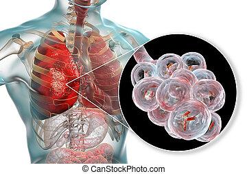 Bakterielle Lungenentzündung, medizinisches Konzept