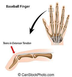 Baseballfinger, Eps8