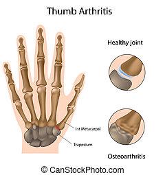 Basis von Daumen Arthritis, Eps8
