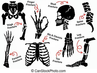 begriff, schenkel, becken, schenkelbein, fester entwurf, wirbel, arm, &, ), (, schwarz, finger, knochenbrüche, gesundheit, weißes, ikone, hüfte, bein, hand, handgelenk, fuß, thorax, sorgfalt, totenschädel, gesicht, absatz, ellbogen, knochen