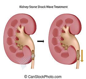 Behandlung von Nierensteinen