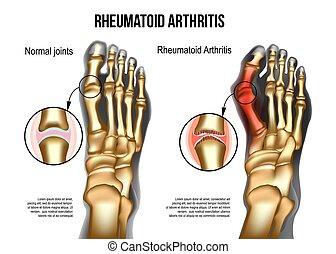 bezahlen knochen, arthritis, rheumatoid