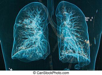 bild, brust, unter, röntgenbilder, 3d