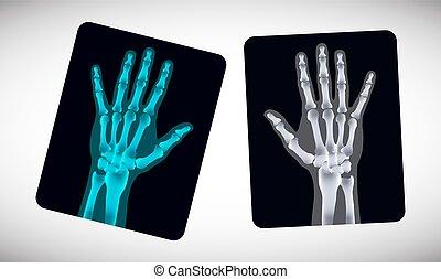 bild, film., vektor, menschliche hände, radiography.