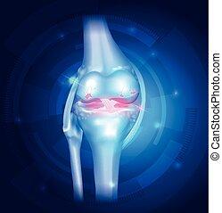 blaues, knie, osteoarthritis, abstrakt, hintergrund