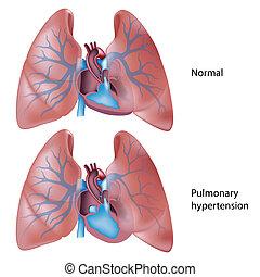 bluthochdruck, lungen, eps10
