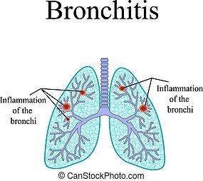 Bronchitis. Die anatomische Struktur der menschlichen Lunge. Vector Illustration auf isoliertem Hintergrund
