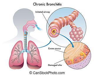 Chronische Bronchitis.