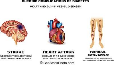 Chronische Komplikationen von Diabetes