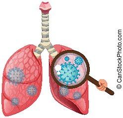 coronavirus, menschliche , ausbreitung, hintergrund, lungen, zelle, weißes