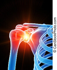 Das Schultergelenk zeigt Schmerzen.