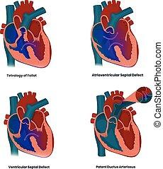 defekte, septal, arteriosus, defekte, patent, fallot, syndrome:, unten, verbunden, herz, vektor, ductur, abbildung, tetralogie